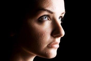 Tratamiento del acné con MTC