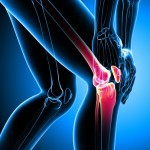 9 Plantas para Tratar el dolor de Artritis