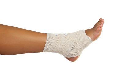 Tratamiento de un caso de rotura espontánea del tendón de Aquiles