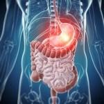 Plantas Medicinales combinadas en pareja para tratar 98 casos de Gastritis Crónica