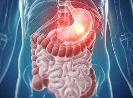 prevenir la metástasis en el postoperatorio del cáncer de estómago