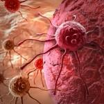 Prescripciones de Medicina Tradicional China para el tratamiento de Tumores Malignos