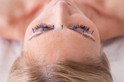 Tratamiento de la enfermedad de Menière con acupuntura