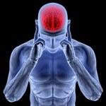 Efecto de suplir la esencia de Riñón, eliminar la flema y estimular la mente en el tratamiento del Alzheimer