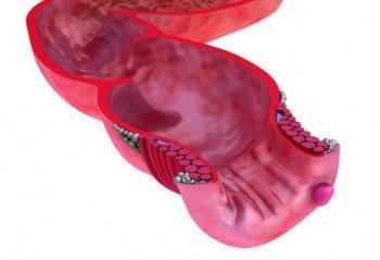 Cómo Tratar las Hemorroides con Plantas Medicinales
