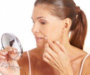 Cómo deshacerse de las Manchas de la Piel con Plantas Medicinales