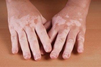 7 Remedios con Plantas para el Vitiligo